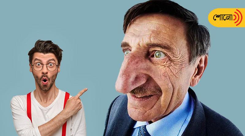 Mehmet Özyürek of Turkey Has The Longest Nose